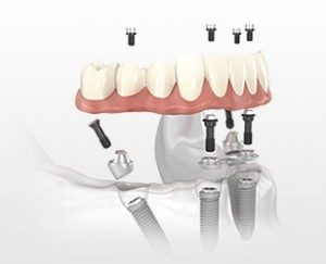 Implant dentures are permanent dentures available in Bloomington, IN.